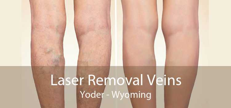 Laser Removal Veins Yoder - Wyoming
