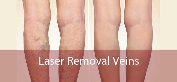 Laser Removal Veins