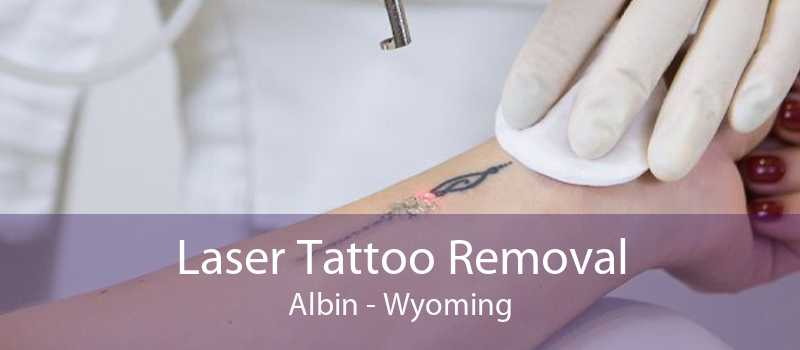 Laser Tattoo Removal Albin - Wyoming