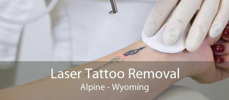 Laser Tattoo Removal Alpine - Wyoming