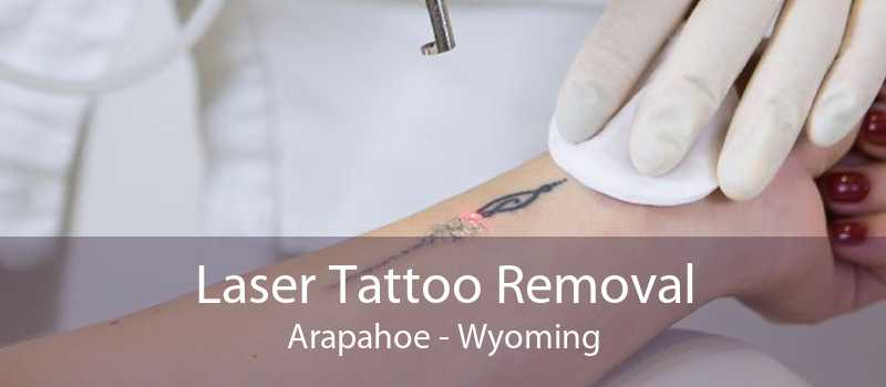 Laser Tattoo Removal Arapahoe - Wyoming