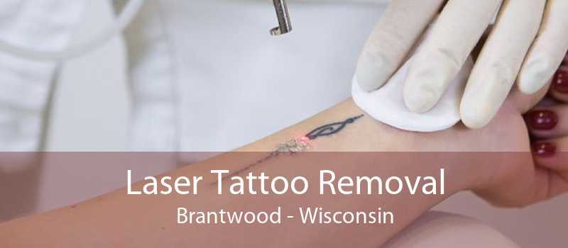 Laser Tattoo Removal Brantwood - Wisconsin