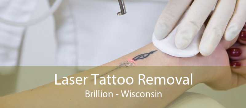 Laser Tattoo Removal Brillion - Wisconsin