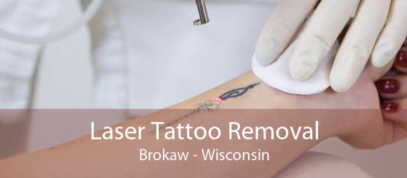 Laser Tattoo Removal Brokaw - Wisconsin