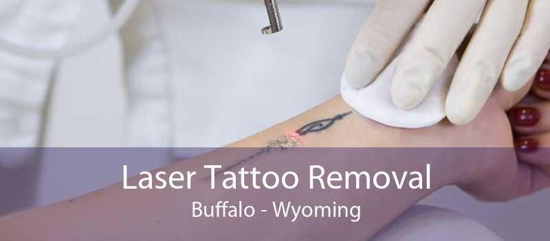 Laser Tattoo Removal Buffalo - Wyoming