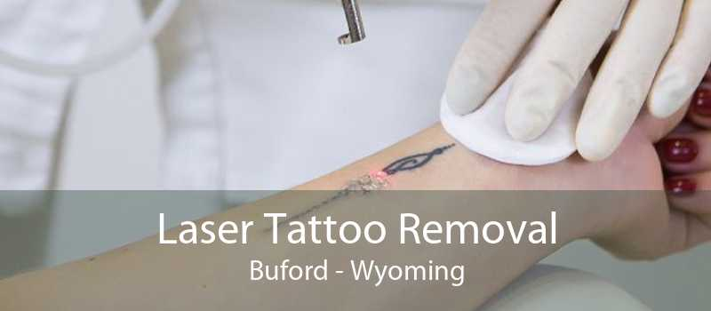 Laser Tattoo Removal Buford - Wyoming