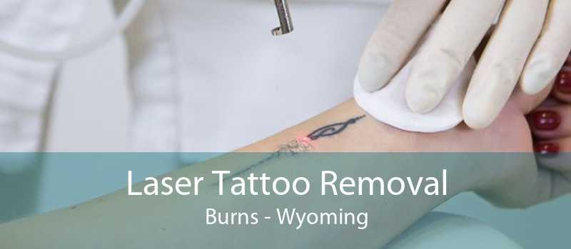 Laser Tattoo Removal Burns - Wyoming