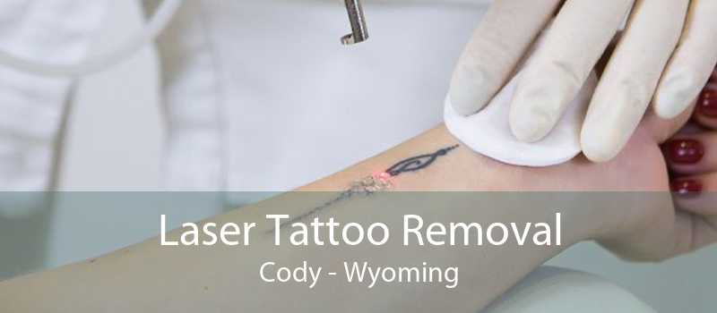 Laser Tattoo Removal Cody - Wyoming