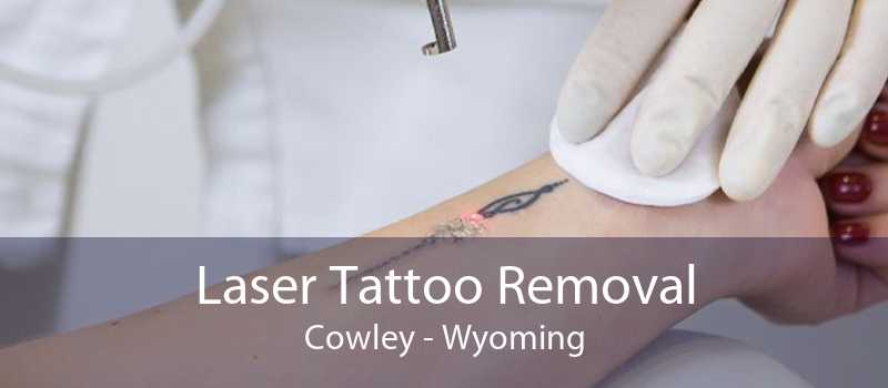 Laser Tattoo Removal Cowley - Wyoming