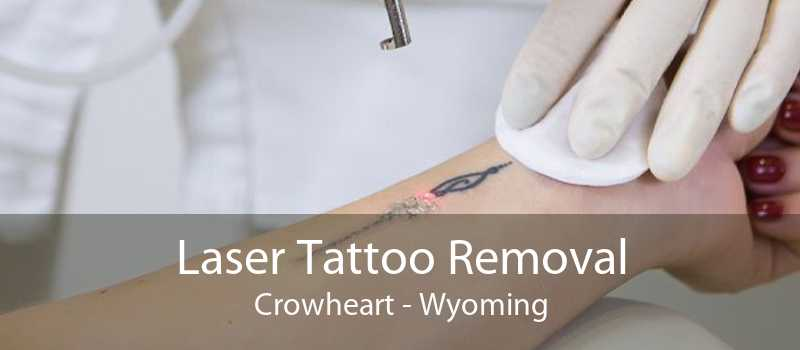 Laser Tattoo Removal Crowheart - Wyoming