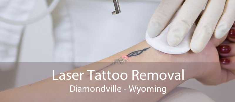 Laser Tattoo Removal Diamondville - Wyoming
