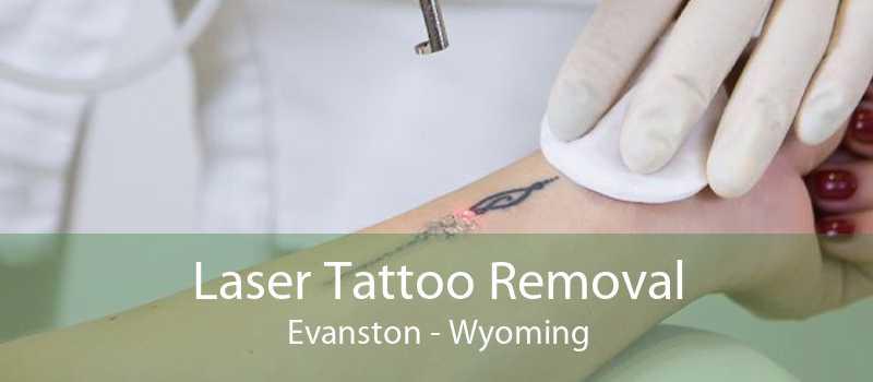 Laser Tattoo Removal Evanston - Wyoming