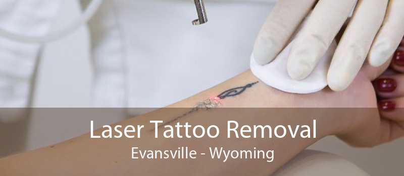 Laser Tattoo Removal Evansville - Wyoming