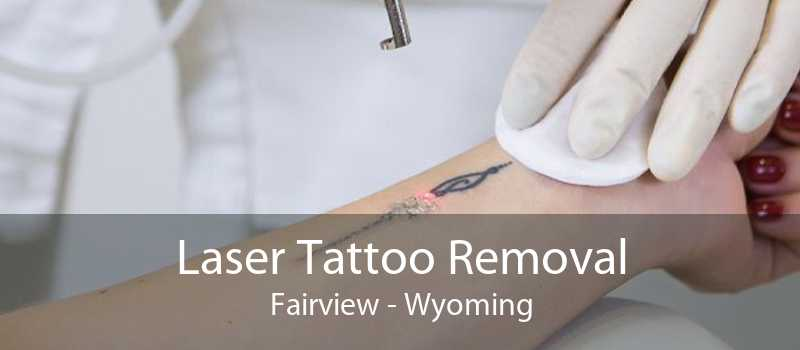 Laser Tattoo Removal Fairview - Wyoming