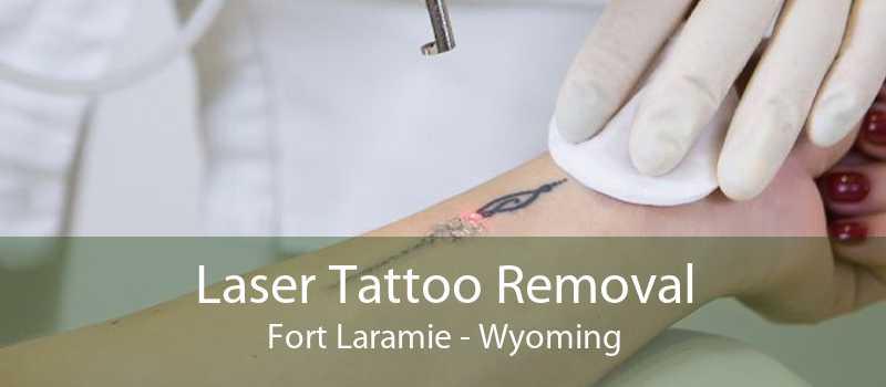Laser Tattoo Removal Fort Laramie - Wyoming