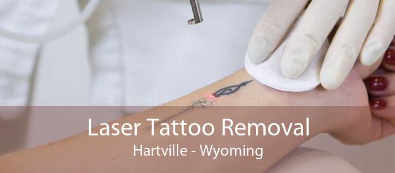 Laser Tattoo Removal Hartville - Wyoming