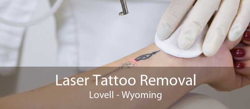 Laser Tattoo Removal Lovell - Wyoming