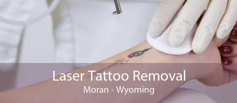 Laser Tattoo Removal Moran - Wyoming