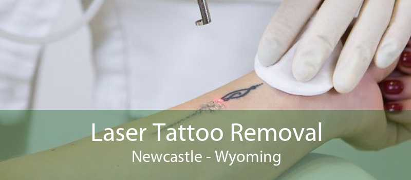 Laser Tattoo Removal Newcastle - Wyoming