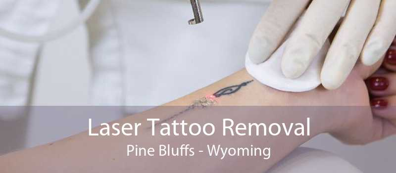 Laser Tattoo Removal Pine Bluffs - Wyoming