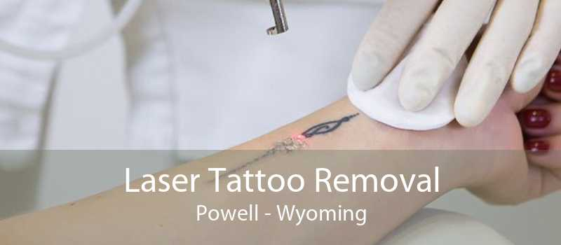 Laser Tattoo Removal Powell - Wyoming