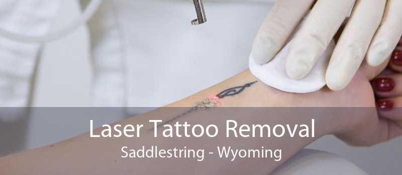 Laser Tattoo Removal Saddlestring - Wyoming