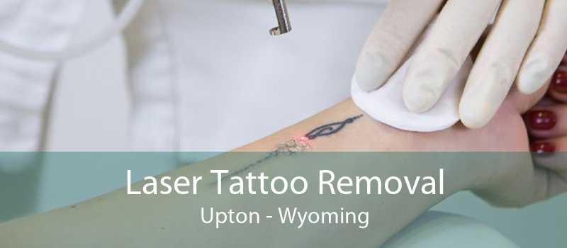 Laser Tattoo Removal Upton - Wyoming