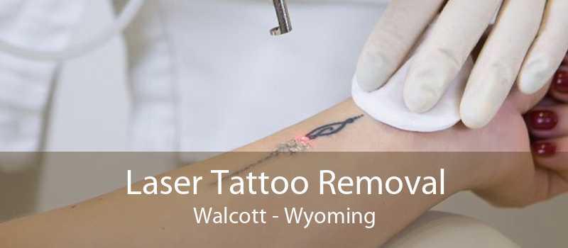 Laser Tattoo Removal Walcott - Wyoming