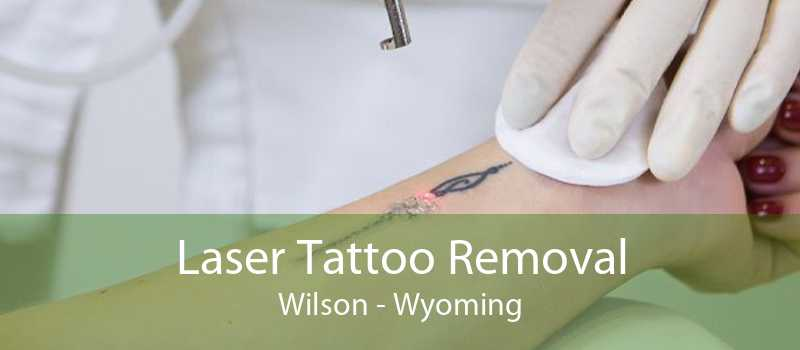 Laser Tattoo Removal Wilson - Wyoming